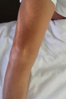 Exhibit Two: Leg scratch